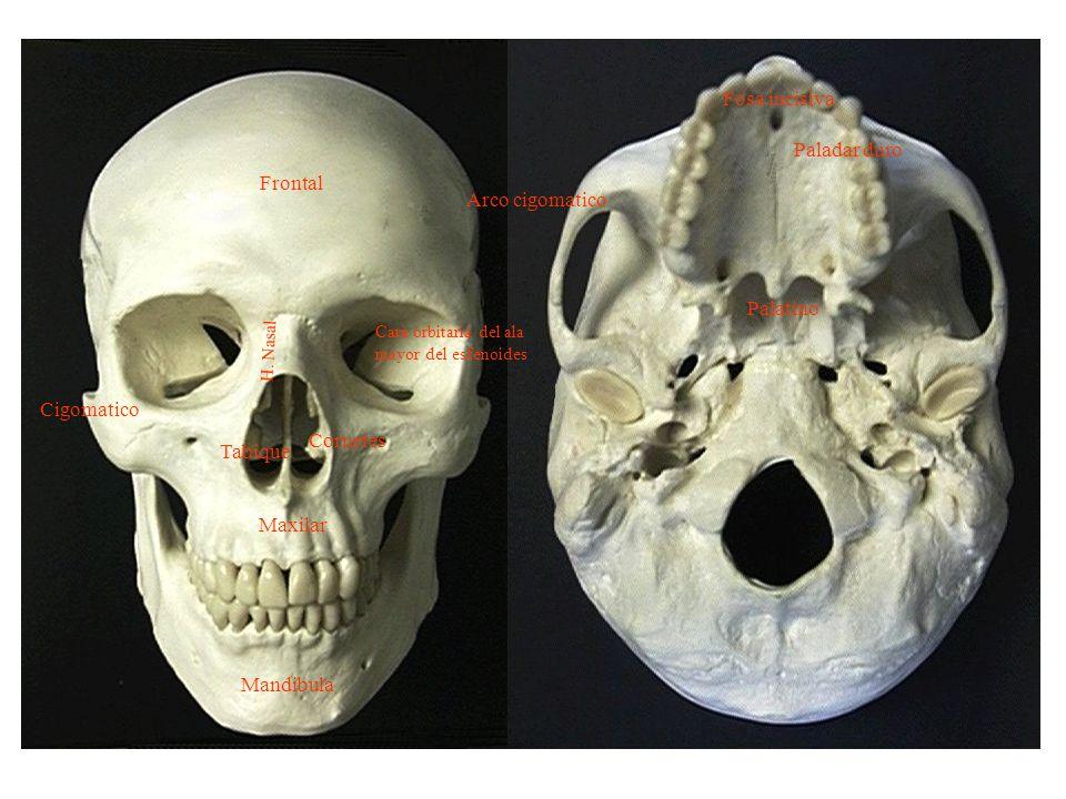 Hueso Esfenoides – Cara anterior Cresta anterior Canales de las fosas nasales Orificios de entrada de los senos esfenoidales Superficie rugosa para la cara posterior de las masas laterales del etmoides – Cara posterior Hace cuerpo con el occipital, representada generalmente por un corte de sierra