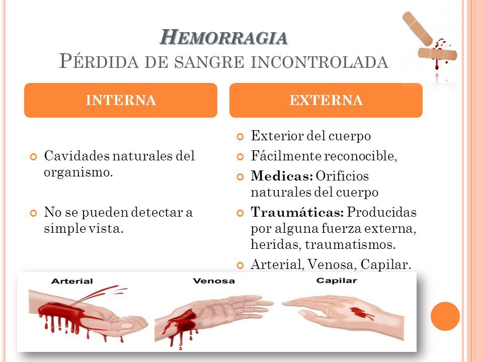 H EMORRAGIA H EMORRAGIA P ÉRDIDA DE SANGRE INCONTROLADA Cavidades naturales del organismo. No se pueden detectar a simple vista. Exterior del cuerpo F