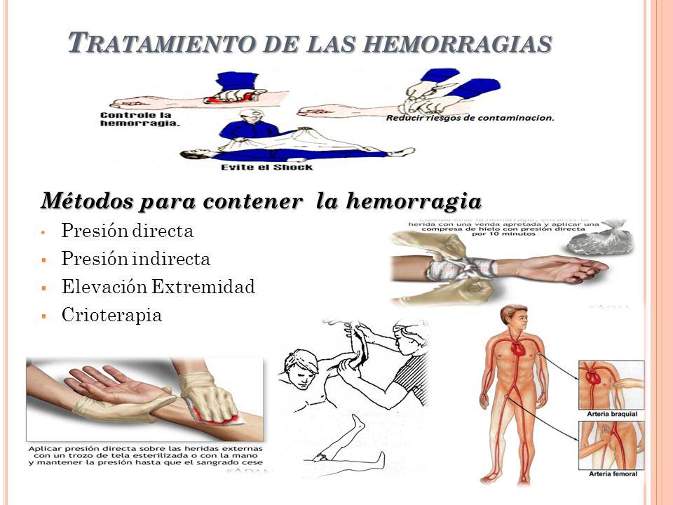 T RATAMIENTO DE LAS HEMORRAGIAS Métodos para contener la hemorragia Presión directa Presión indirecta Elevación Extremidad Crioterapia