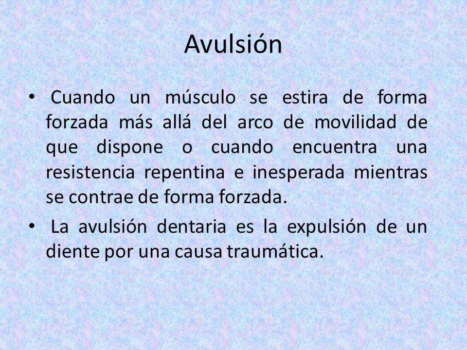 Avulsión Cuando un músculo se estira de forma forzada más allá del arco de movilidad de que dispone o cuando encuentra una resistencia repentina e ine
