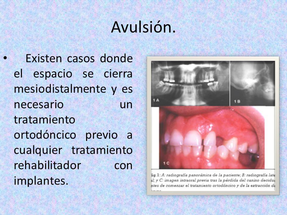 Avulsión. Existen casos donde el espacio se cierra mesiodistalmente y es necesario un tratamiento ortodóncico previo a cualquier tratamiento rehabilit
