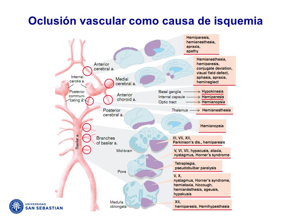 Oclusión vascular como causa de isquemia
