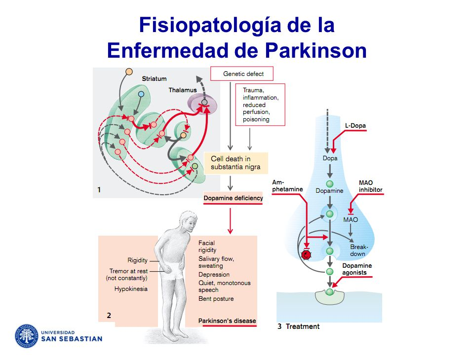 Fisiopatología de la Enfermedad de Parkinson