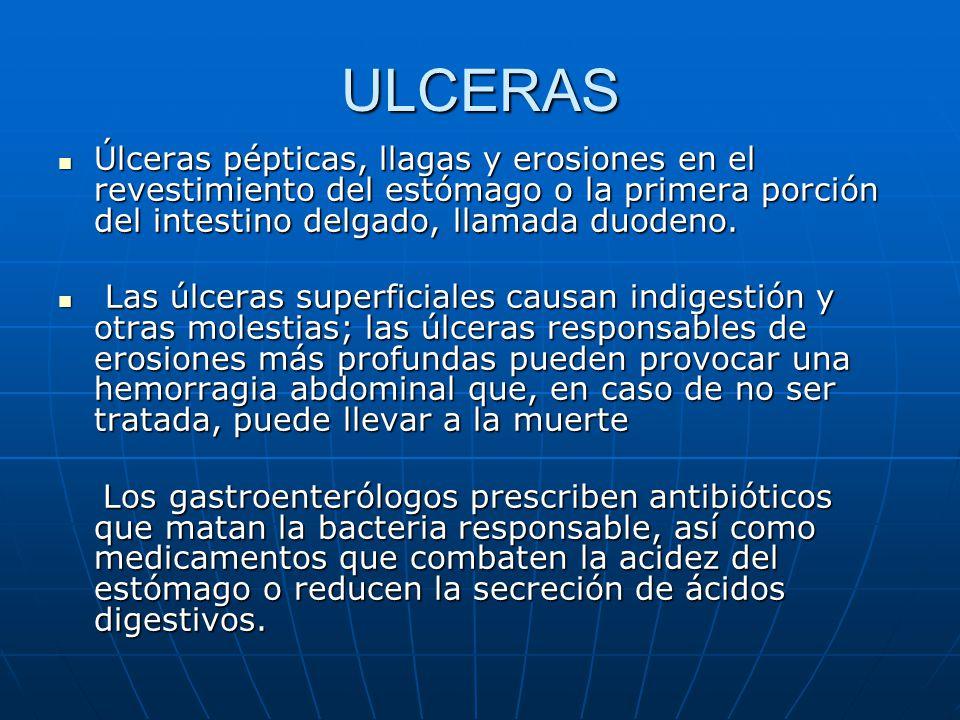 ULCERAS Úlceras pépticas, llagas y erosiones en el revestimiento del estómago o la primera porción del intestino delgado, llamada duodeno. Úlceras pép