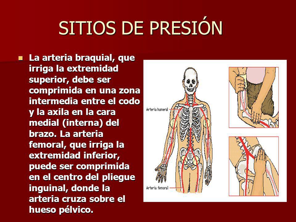 COMPLICACIONES Si se rompe una arteria principal, el paciente puede morir desangrado en un minuto.