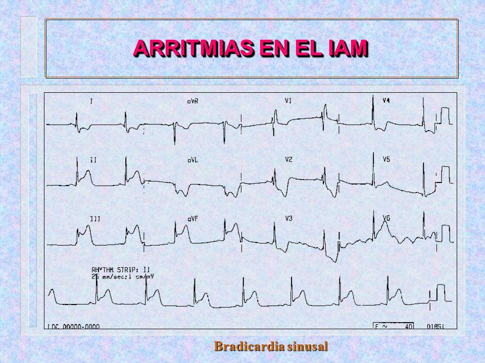 ARRITMIAS EN EL IAM Taquicardia sinusal