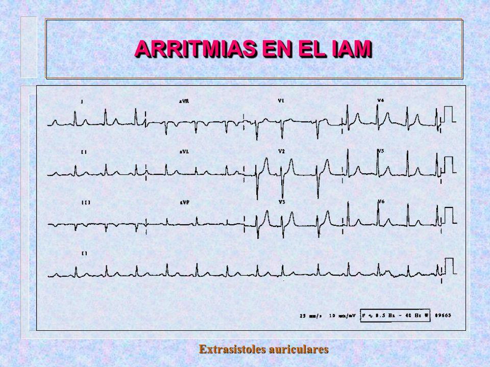 ARRITMIAS EN EL IAM Bradicardia sinusal