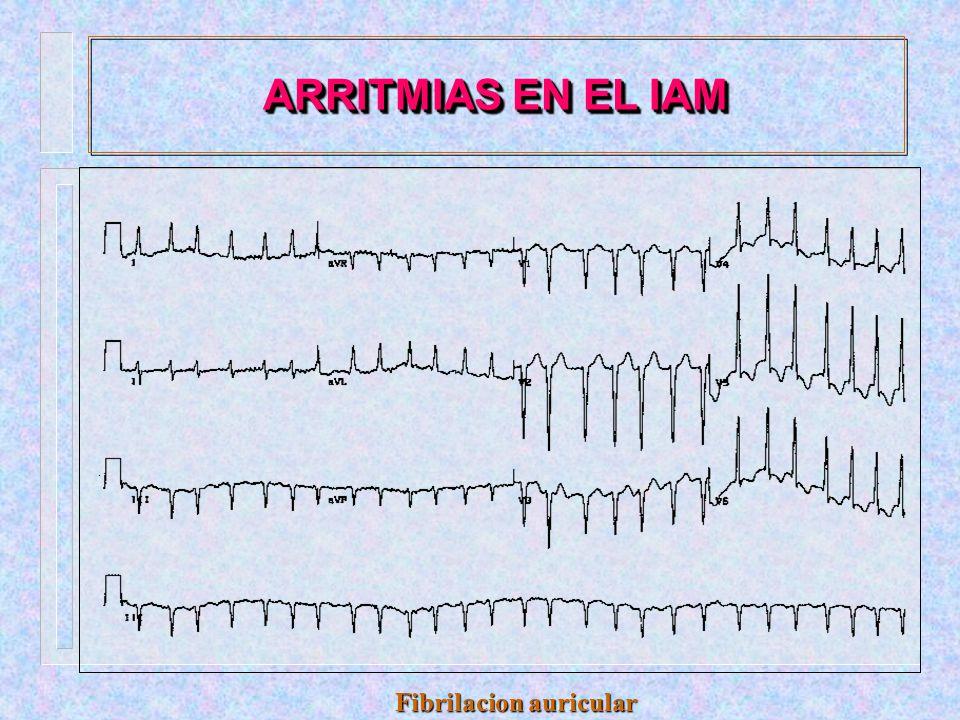 ARRITMIAS EN EL IAM Extrasistoles auriculares