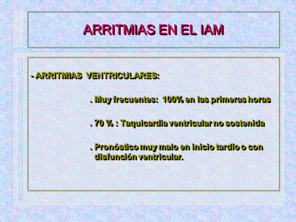 ARRITMIAS EN EL IAM Fibrilacion auricular