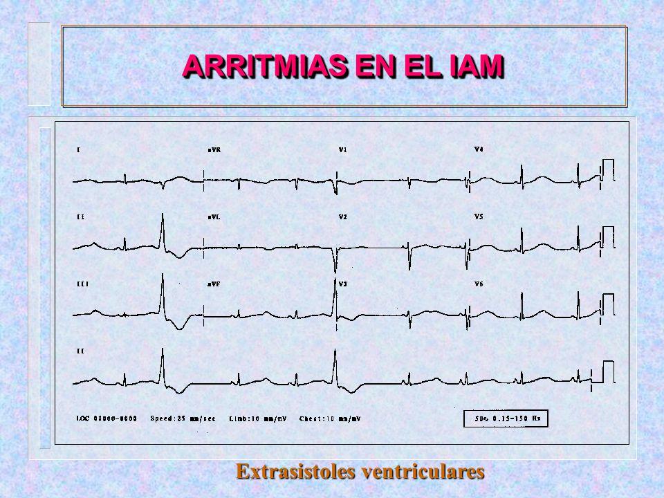 - FISIOPATOGENIA:.Disminución de la distensibilidad del ventrículo..