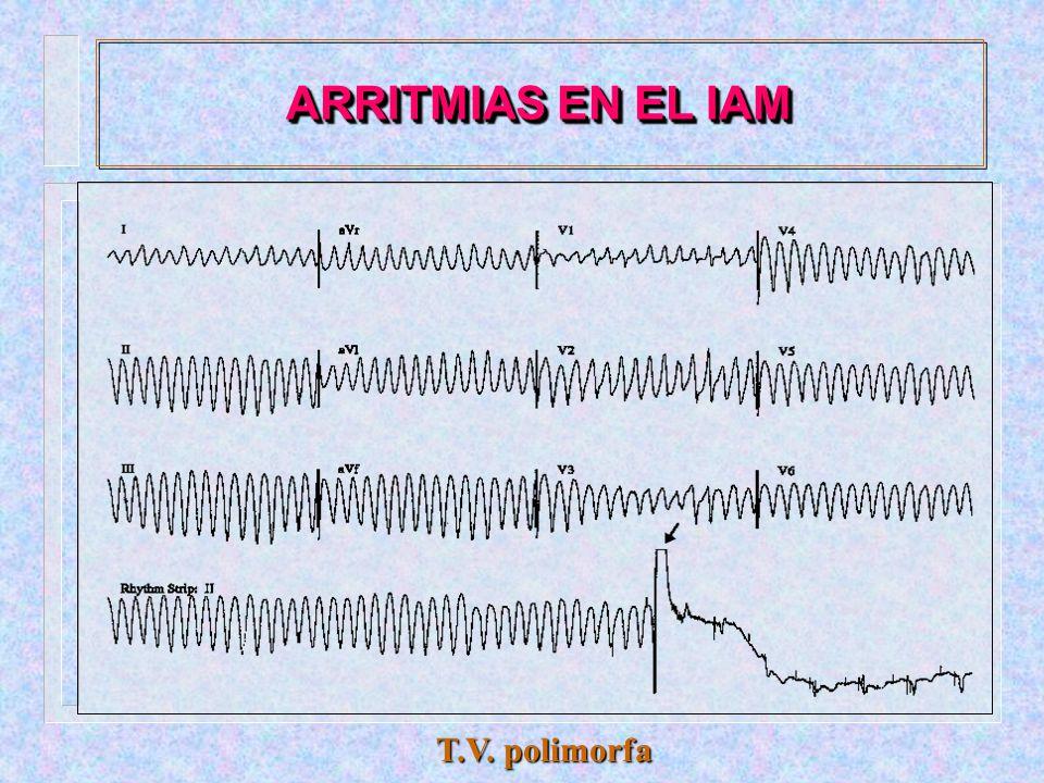 ARRITMIAS EN EL IAM Taquicardia ventricular