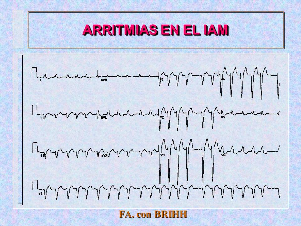 ARRITMIAS EN EL IAM T.V. polimorfa