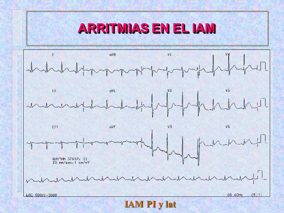 Fibrilación auricular ARRITMIAS EN EL IAM