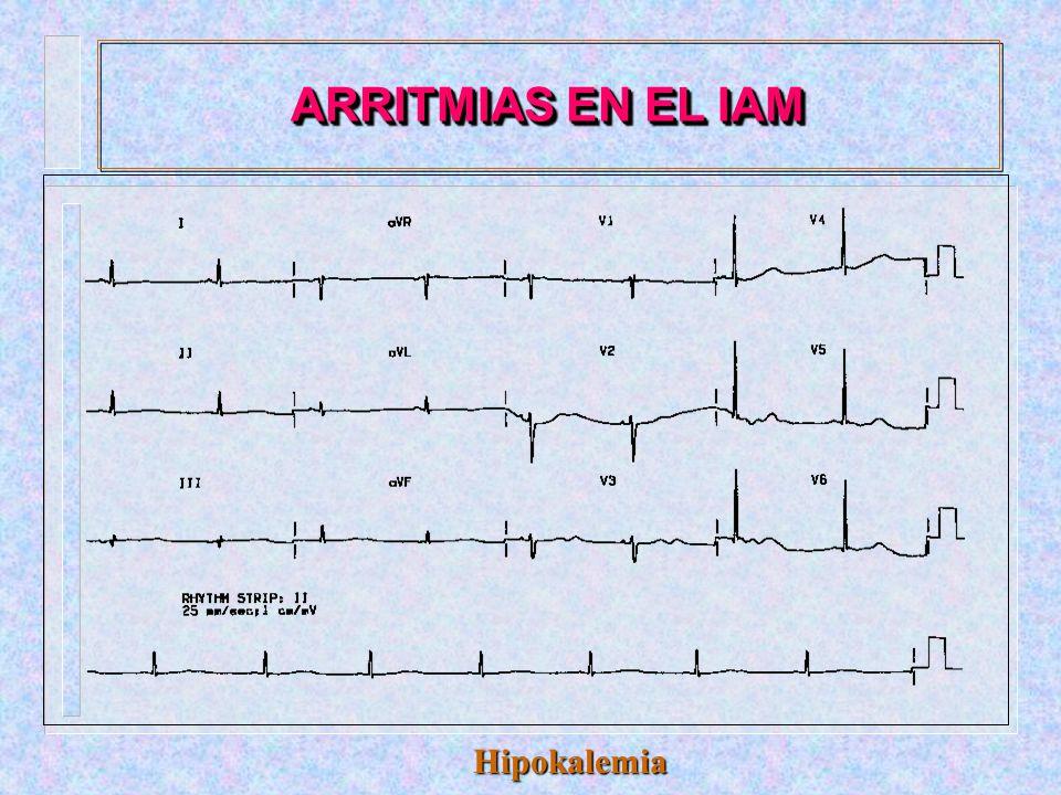 ARRITMIAS EN EL IAM Hiperkalemia
