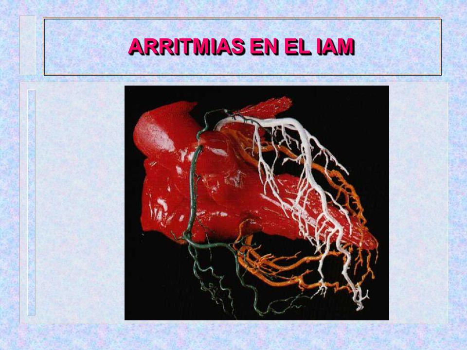 ARRITMIAS EN EL IAM - LOCALIZACION: