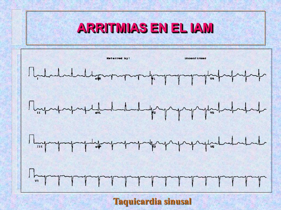 ARRITMIAS EN EL IAM - CLASIFICACION :.Alteraciones de la conducción AV.