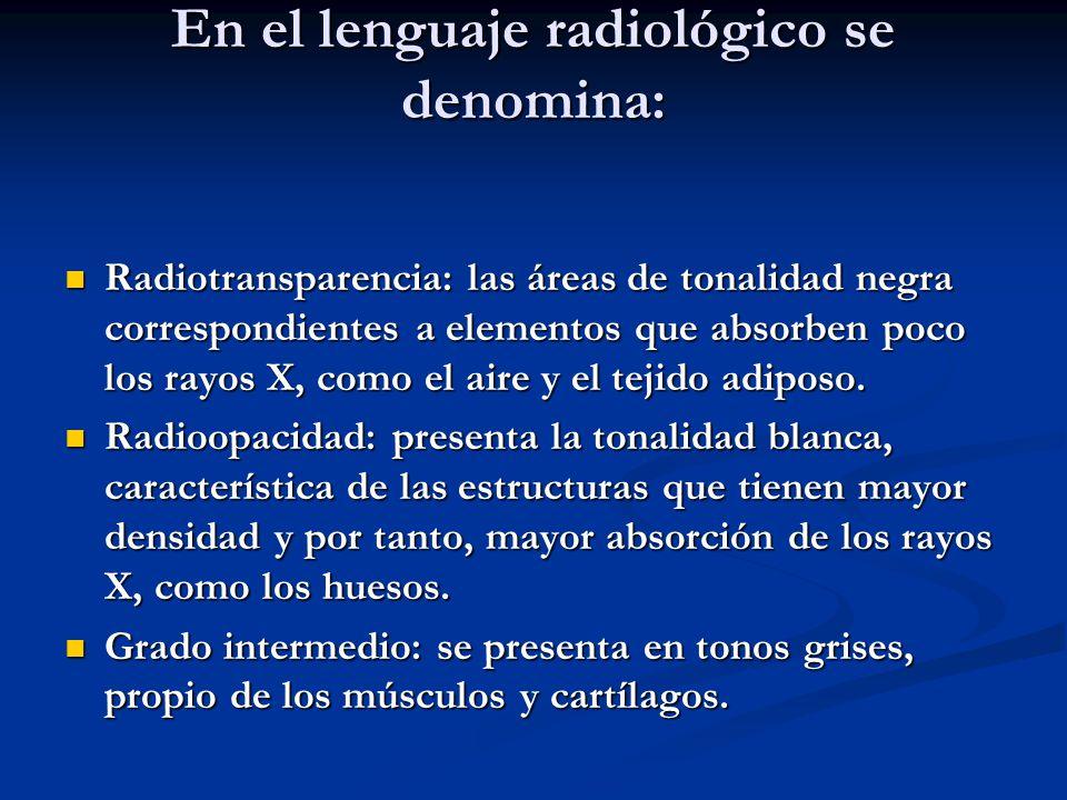 En el lenguaje radiológico se denomina: Radiotransparencia: las áreas de tonalidad negra correspondientes a elementos que absorben poco los rayos X, c