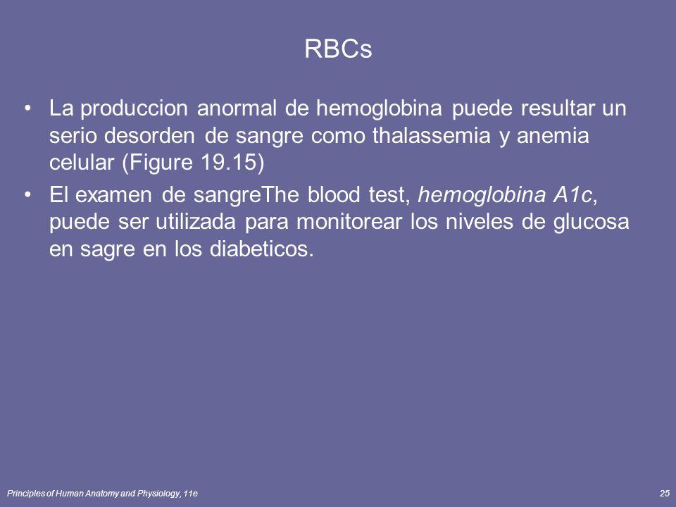 Principles of Human Anatomy and Physiology, 11e25 RBCs La produccion anormal de hemoglobina puede resultar un serio desorden de sangre como thalassemi