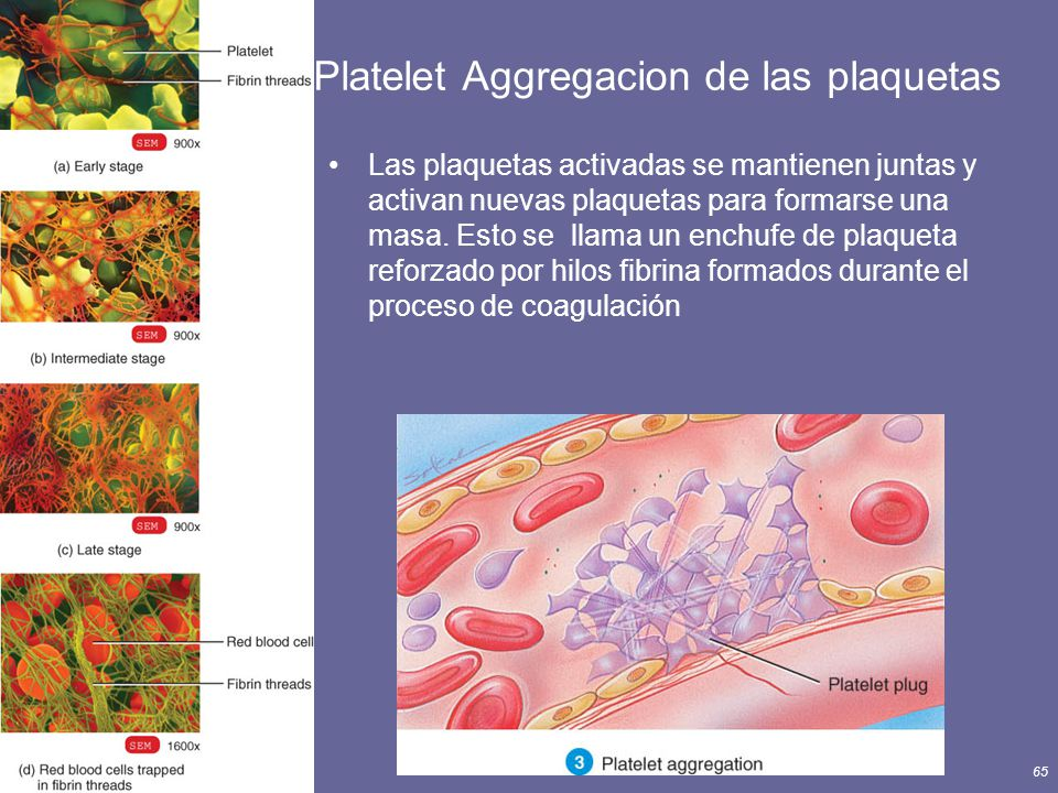 Principles of Human Anatomy and Physiology, 11e65 Platelet Aggregacion de las plaquetas Las plaquetas activadas se mantienen juntas y activan nuevas p