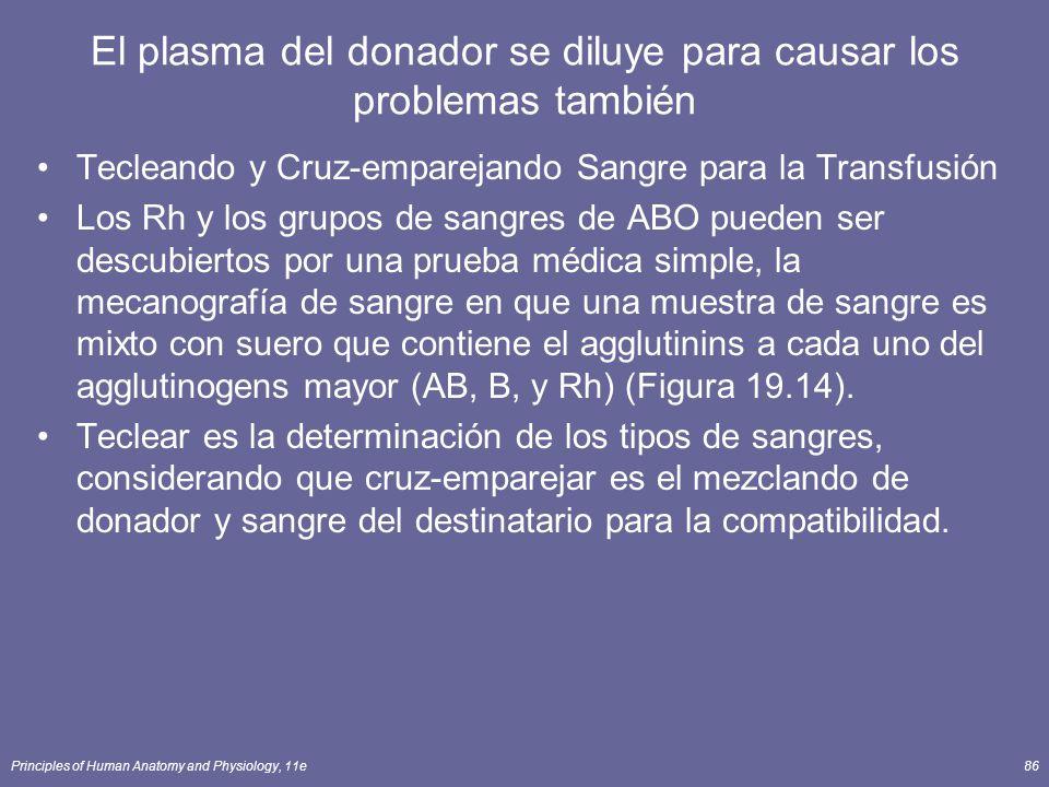 Principles of Human Anatomy and Physiology, 11e86 El plasma del donador se diluye para causar los problemas también Tecleando y Cruz-emparejando Sangr