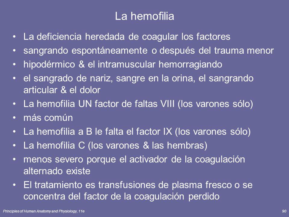 Principles of Human Anatomy and Physiology, 11e90 La hemofilia La deficiencia heredada de coagular los factores sangrando espontáneamente o después de