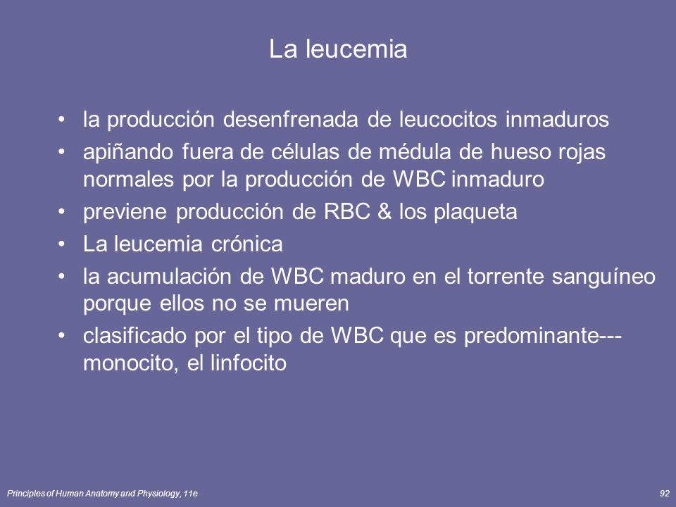 Principles of Human Anatomy and Physiology, 11e92 La leucemia la producción desenfrenada de leucocitos inmaduros apiñando fuera de células de médula d
