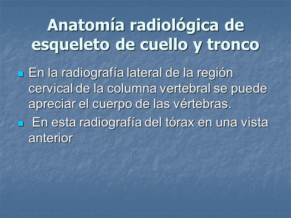 Anatomía radiológica de esqueleto de cuello y tronco En la radiografía lateral de la región cervical de la columna vertebral se puede apreciar el cuerpo de las vértebras.