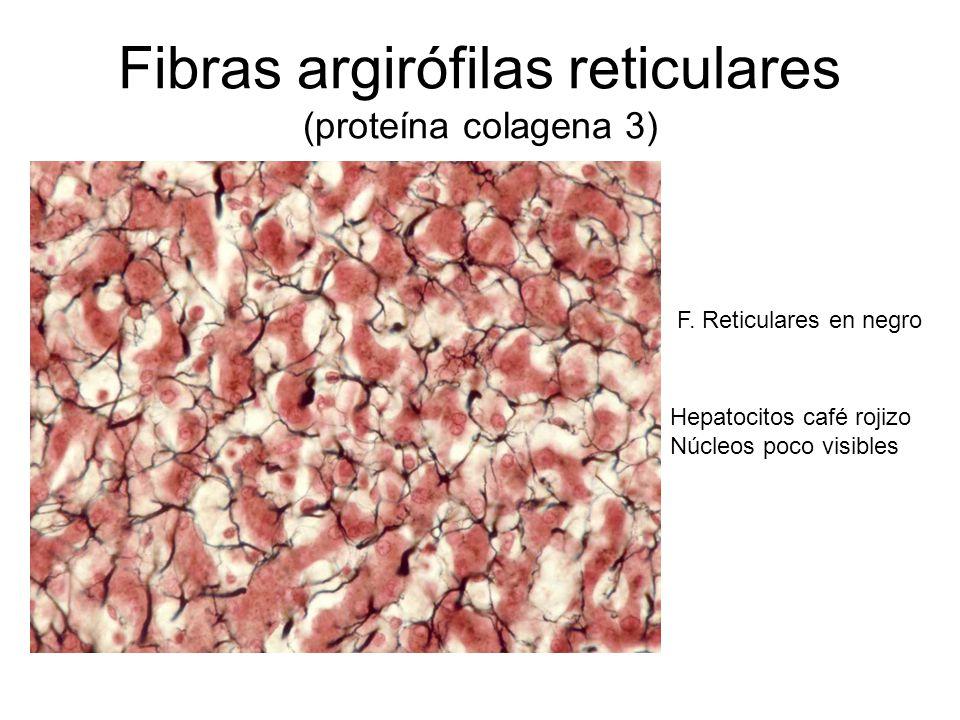 Fibras argirófilas reticulares (proteína colagena 3) F.