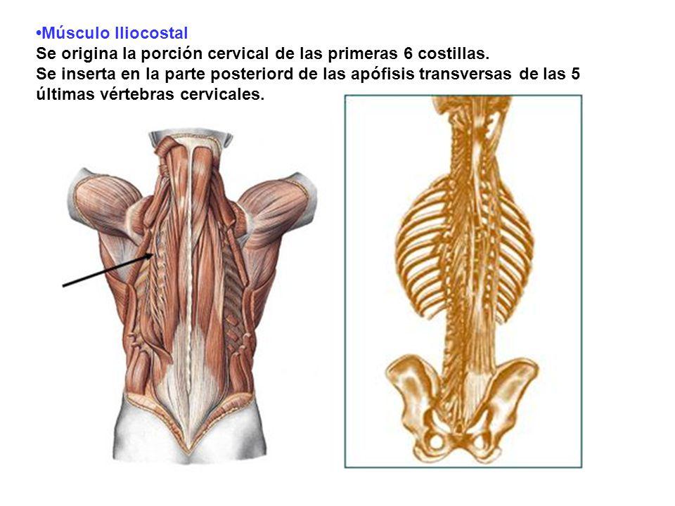 Músculo Iliocostal Se origina la porción cervical de las primeras 6 costillas. Se inserta en la parte posteriord de las apófisis transversas de las 5