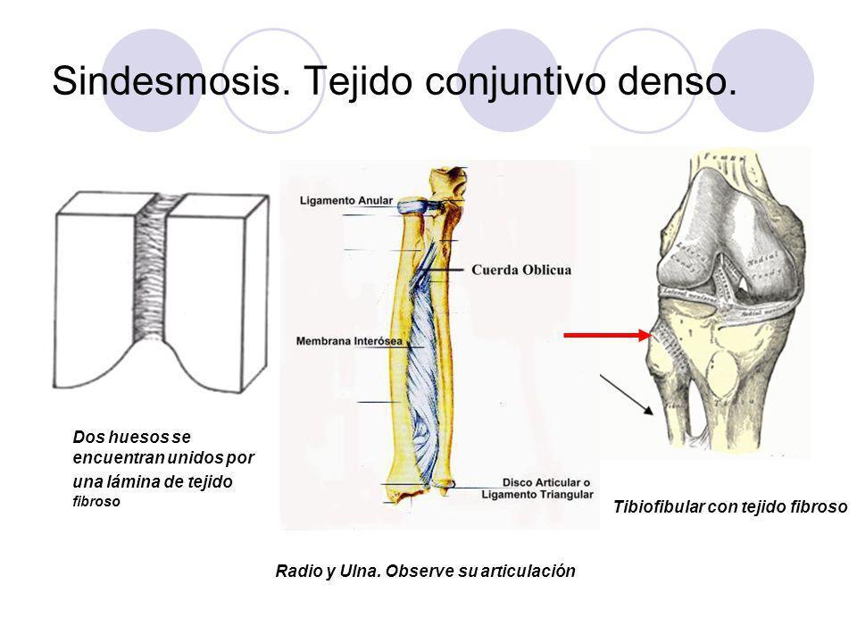 Sindesmosis. Tejido conjuntivo denso. Dos huesos se encuentran unidos por una lámina de tejido fibroso Radio y Ulna. Observe su articulación Tibiofibu