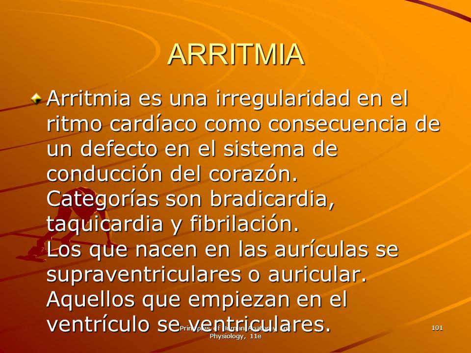 Principles of Human Anatomy and Physiology, 11e 101 ARRITMIA Arritmia es una irregularidad en el ritmo cardíaco como consecuencia de un defecto en el