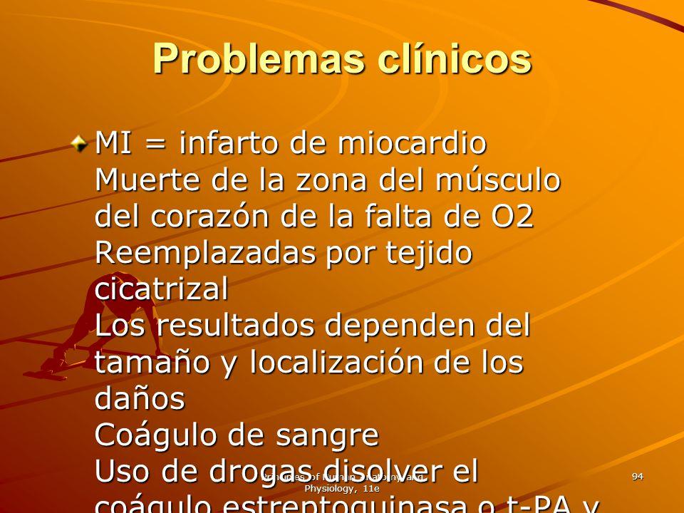 Principles of Human Anatomy and Physiology, 11e 94 Problemas clínicos MI = infarto de miocardio Muerte de la zona del músculo del corazón de la falta