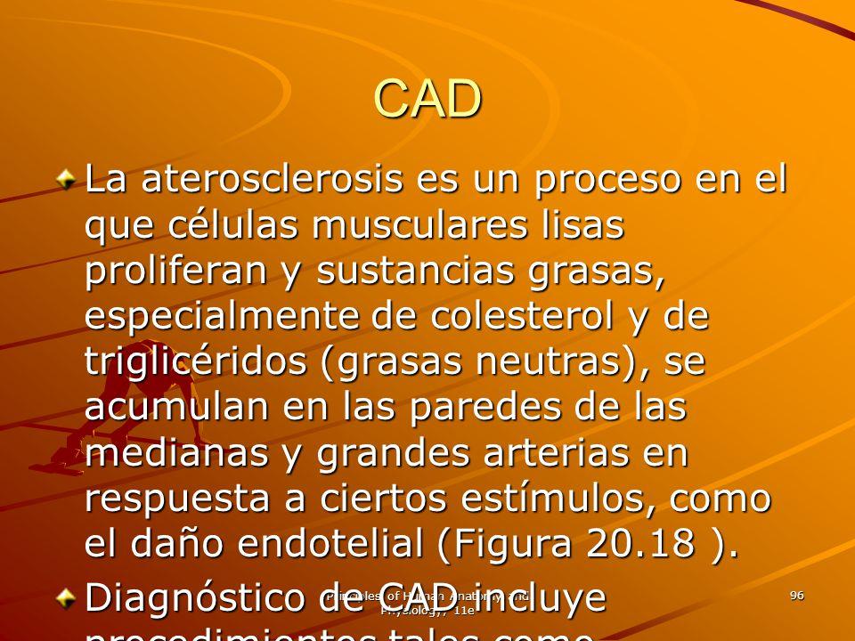 Principles of Human Anatomy and Physiology, 11e 96 CAD La aterosclerosis es un proceso en el que células musculares lisas proliferan y sustancias gras