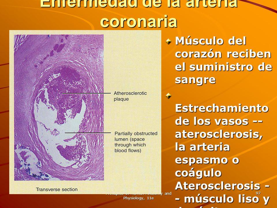 Principles of Human Anatomy and Physiology, 11e 97 Enfermedad de la arteria coronaria Músculo del corazón reciben el suministro de sangre Estrechamien