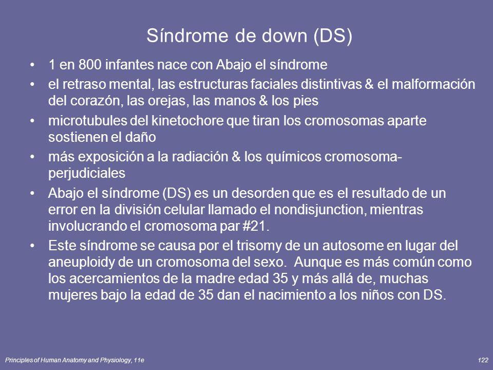 Principles of Human Anatomy and Physiology, 11e122 Síndrome de down (DS) 1 en 800 infantes nace con Abajo el síndrome el retraso mental, las estructuras faciales distintivas & el malformación del corazón, las orejas, las manos & los pies microtubules del kinetochore que tiran los cromosomas aparte sostienen el daño más exposición a la radiación & los químicos cromosoma- perjudiciales Abajo el síndrome (DS) es un desorden que es el resultado de un error en la división celular llamado el nondisjunction, mientras involucrando el cromosoma par #21.