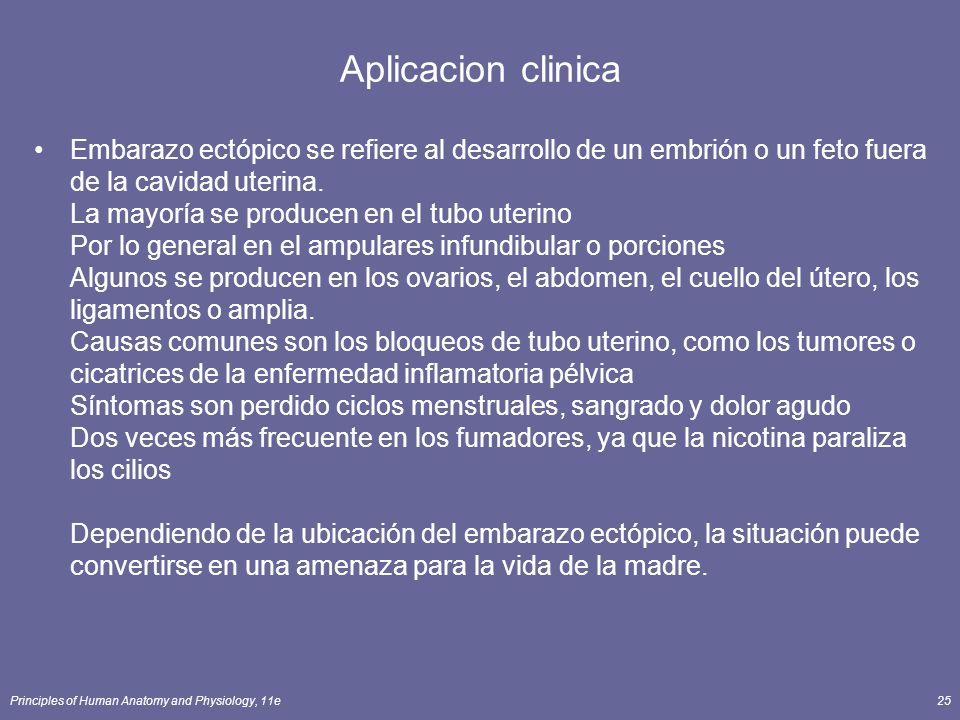 Principles of Human Anatomy and Physiology, 11e25 Aplicacion clinica Embarazo ectópico se refiere al desarrollo de un embrión o un feto fuera de la ca