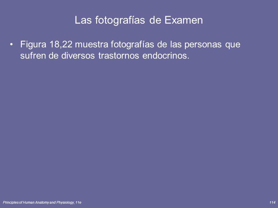 Principles of Human Anatomy and Physiology, 11e114 Las fotografías de Examen Figura 18,22 muestra fotografías de las personas que sufren de diversos t