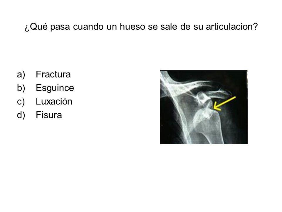 ¿Qué pasa cuando un hueso se sale de su articulacion? a)Fractura b)Esguince c)Luxación d)Fisura
