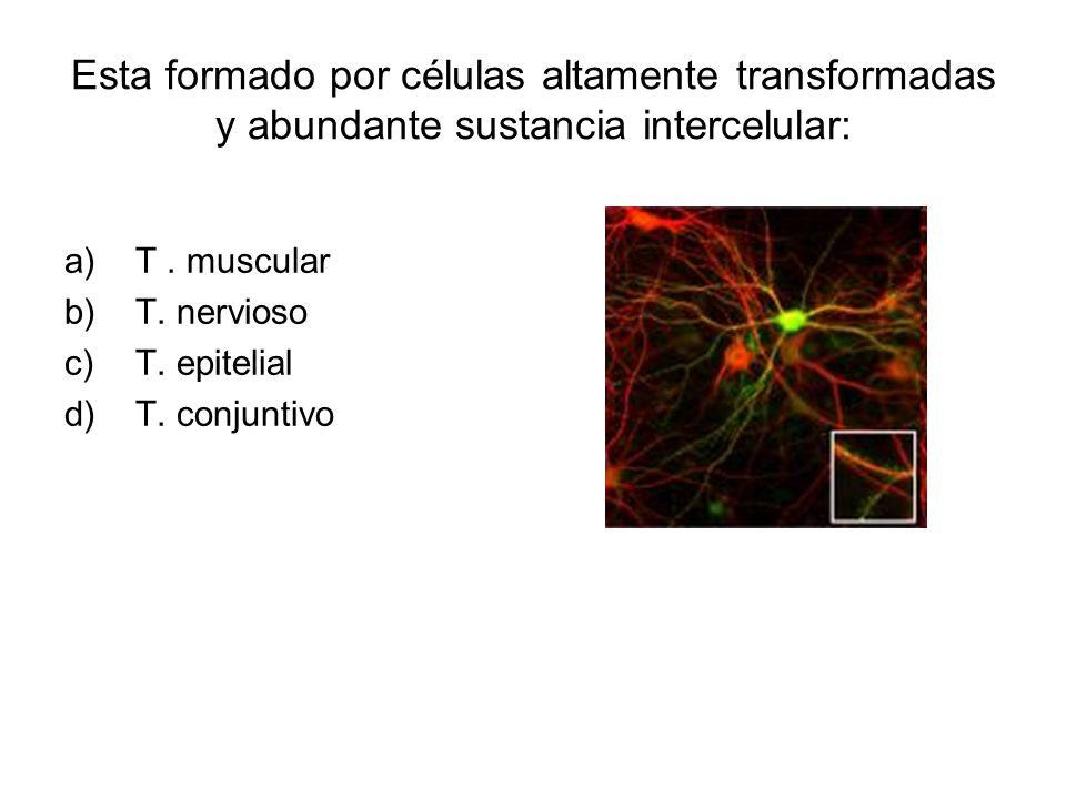 Esta formado por células altamente transformadas y abundante sustancia intercelular: a)T.