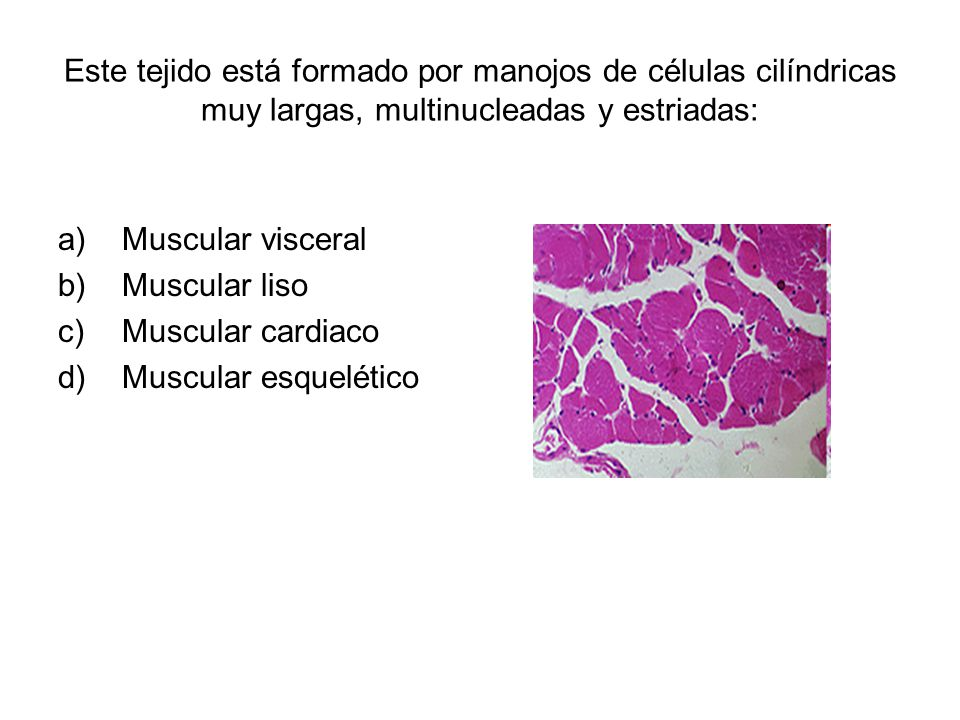 Este tejido está formado por manojos de células cilíndricas muy largas, multinucleadas y estriadas: a)Muscular visceral b)Muscular liso c)Muscular cardiaco d)Muscular esquelético