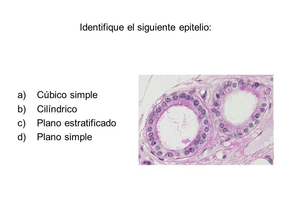 Identifique el siguiente epitelio: a)Cúbico simple b)Cilíndrico c)Plano estratificado d)Plano simple