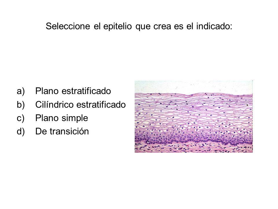 Seleccione el epitelio que crea es el indicado: a)Plano estratificado b)Cilíndrico estratificado c)Plano simple d)De transición