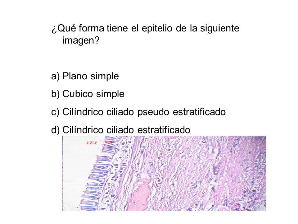 ¿Qué forma tiene el epitelio de la siguiente imagen? a)Plano simple b)Cubico simple c)Cilíndrico ciliado pseudo estratificado d)Cilíndrico ciliado est