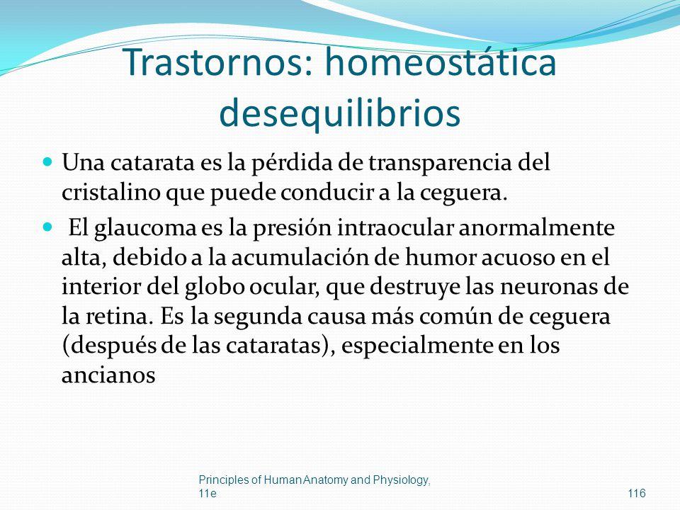 Trastornos: homeostática desequilibrios Una catarata es la pérdida de transparencia del cristalino que puede conducir a la ceguera. El glaucoma es la