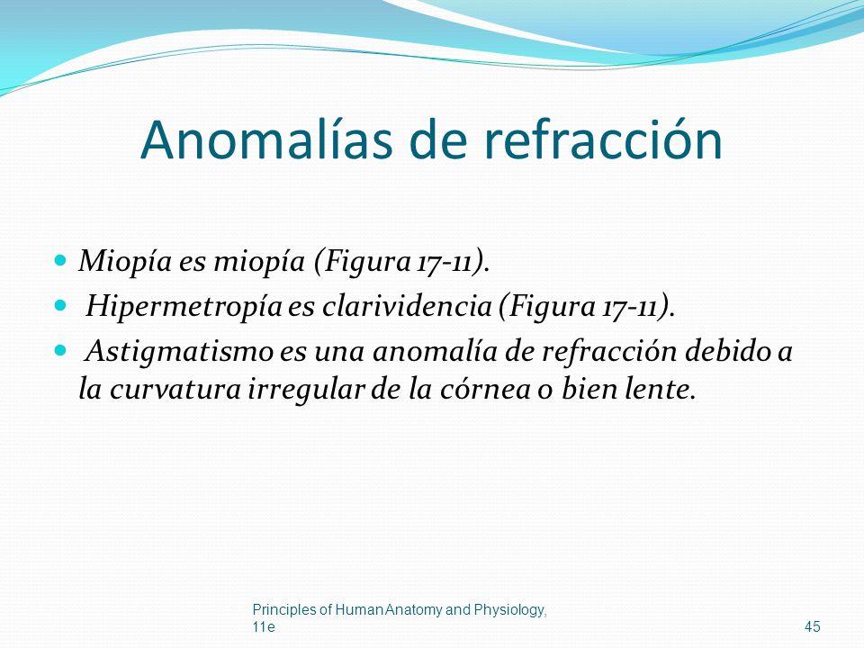 Anomalías de refracción Miopía es miopía (Figura 17-11). Hipermetropía es clarividencia (Figura 17-11). Astigmatismo es una anomalía de refracción deb