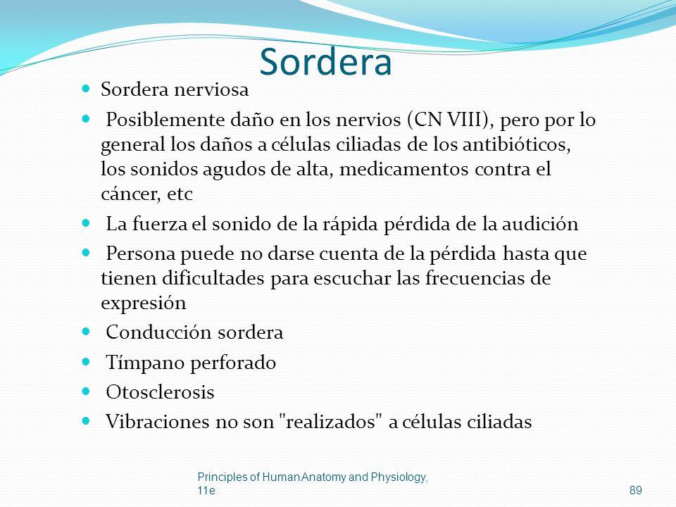 Sordera Sordera nerviosa Posiblemente daño en los nervios (CN VIII), pero por lo general los daños a células ciliadas de los antibióticos, los sonidos