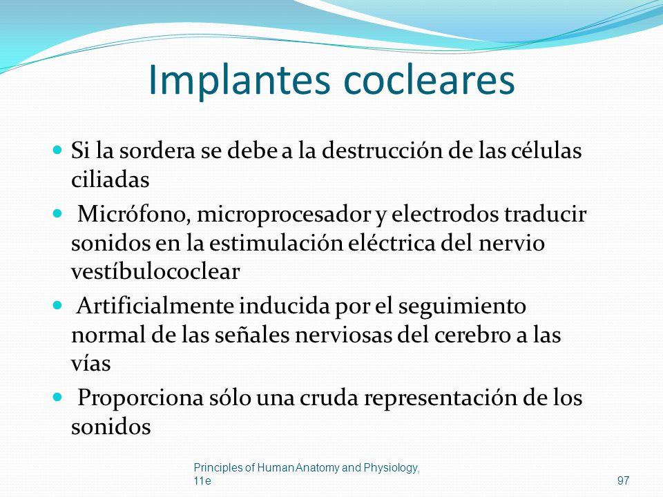 Implantes cocleares Si la sordera se debe a la destrucción de las células ciliadas Micrófono, microprocesador y electrodos traducir sonidos en la esti