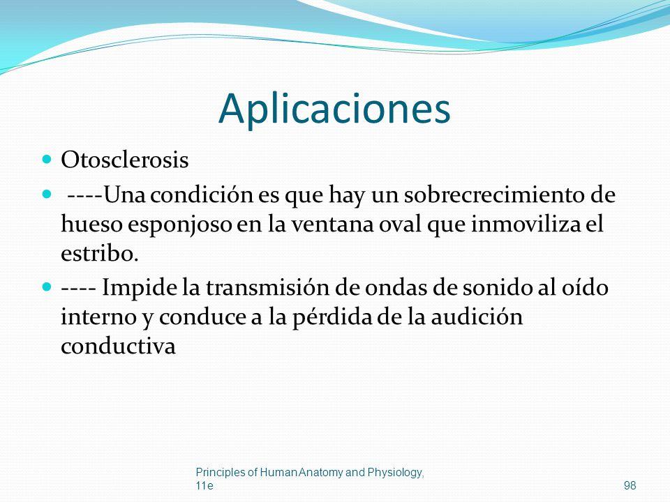 Aplicaciones Otosclerosis ----Una condición es que hay un sobrecrecimiento de hueso esponjoso en la ventana oval que inmoviliza el estribo. ---- Impid