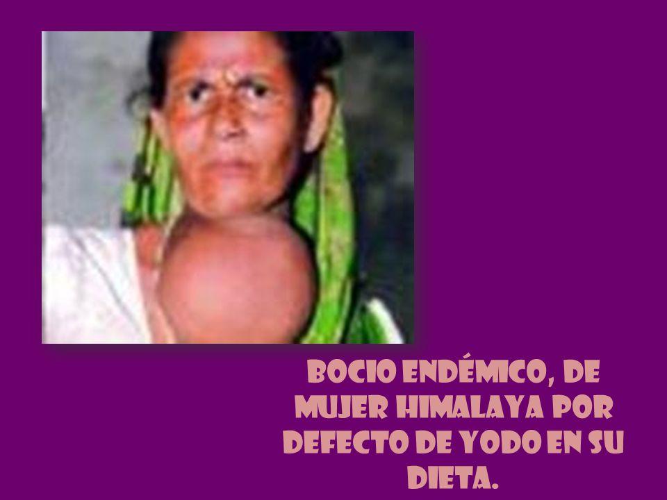 Bocio endémico, de mujer Himalaya por defecto de yodo en su dieta.