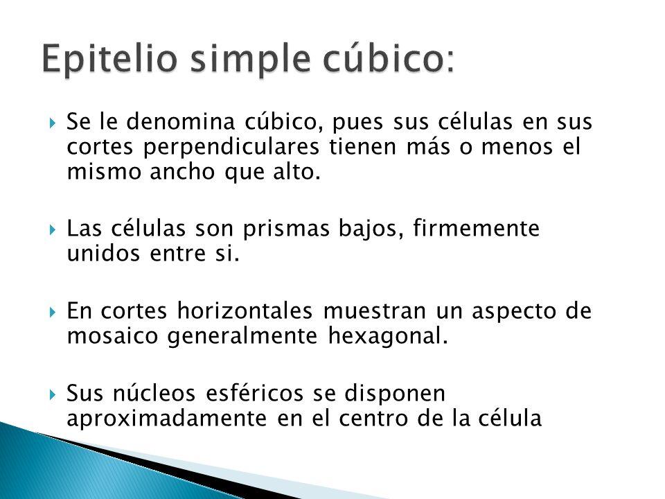 Se le denomina cúbico, pues sus células en sus cortes perpendiculares tienen más o menos el mismo ancho que alto. Las células son prismas bajos, firme